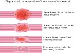 Tissue/injury repair stages